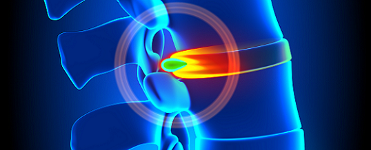 Chiropractic Reduces Herniated Disc Pain
