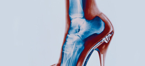 Designer bags, smartphones and high heels could affect your health say NZ Chiropractors